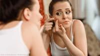 Las personas con acné tienen menos arrugas