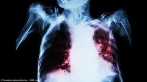 Veneno de escorpión contra la tuberculosis