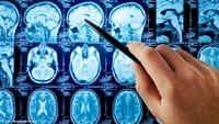 Mejor predicción del ictus cerebral