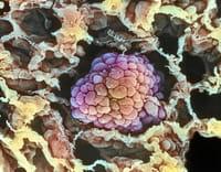 Cáncer de pulmón, ¿adiós a la 'quimio'?
