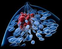 La desactivación de una enzima reduce el crecimiento del tumor y las células cancerosas