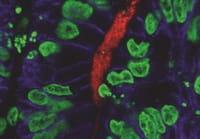Investigadores estadounidenses crean 'mini estómagos' humanos a partir de células madre