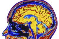 Identifican un receptor del sistema nervioso clave para la prevención de la epilepsia