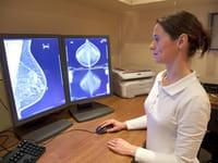 Resuelven misterio sobre el origen del cáncer de mama