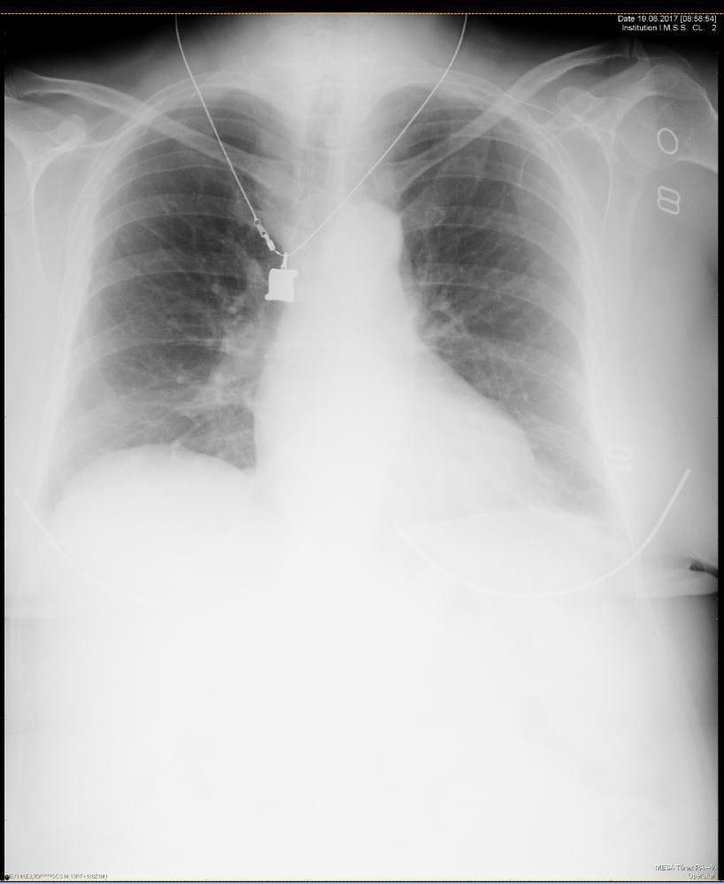 Radiografía de tórax de una mujer de 78 años [Resuelto..