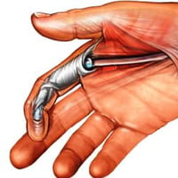 Nueva terapia no quirúrgica, probada por Atletas Profesionales para las lesiones le los tendones