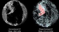 Menor riesgo de cáncer de mama en las mujeres que hacen ejercicio físico con regularidad