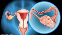Vacuna contra el cáncer de ovarios