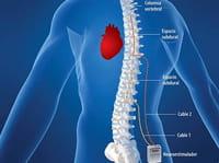 Tratan la insuficiencia cardiaca con un estimulador de espina dorsal