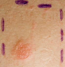 enfermedad de gilbert tratamiento