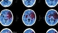 Confirman relación entre herpes y alzhéimer
