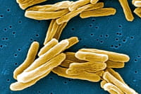 Cada cuatro segundos muere una persona por una infección