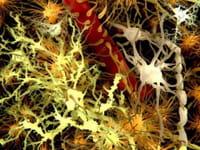 La causa de la enorme incidencia del Mal de Alzheimer entre las personas con síndrome de Down