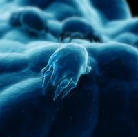 Cambios ambientales causan incremento de alergias respiratorias