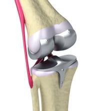 La creación de una rodilla en el laboratorio