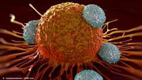 Nueva esperanza para el cáncer de colon
