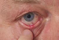 Limitar el uso de lentillas a la tarde mitiga los efectos de las alergias