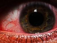 Relacionan las estatinas con un menor riesgo de glaucoma