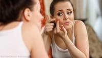 Una vacuna contra el acné