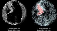 La acupuntura y el ejercicio podrían aliviar el dolor de las pacientes de cáncer de mama