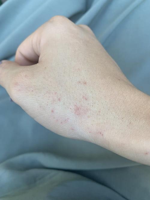 puntitos rojos en la piel que no pican