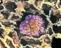 Qué hace que los hombres sean más propensos al cáncer de pulmón que las mujeres