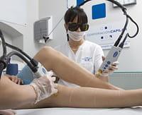 Los riesgos del depilado láser