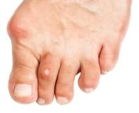 porque duelen la punta de los dedos de los pies