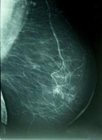 ¿El ocaso de la mamografía?