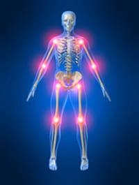 Artritis Reumatoide, también ataca a jóvenes