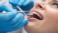 Blanqueamientos dentales peligrosos