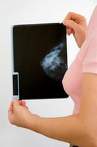 La Hormonoterapia es segura cuando hay receptores hormonales positivos