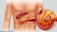 Esperanza contra el cáncer de páncreas