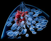 Hallan cuatro nuevas proteínas sobre las que actuar en procesos malignos del cáncer de mama