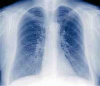 Médicos Sin Fronteras denuncia políticas desfasadas contra la tuberculosis