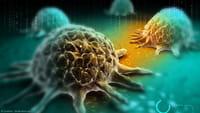 Prever metástasis de cáncer de mama
