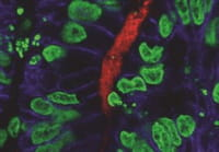Crece la gravedad de una parasitosis