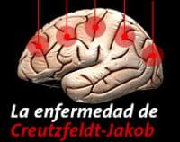 Enfermedad de Creutzfeldt-Jakob