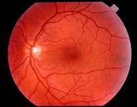 Los medicamentos para reducir el colesterol pueden ser eficaces para la degeneración macular