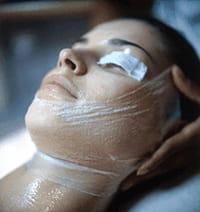 La microdermoabrasión estimula la regeneración de la piel