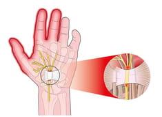 Hormigueo de la presión arterial en las manos