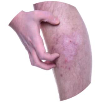 cuanto dura una reacción alérgica a un medicamento