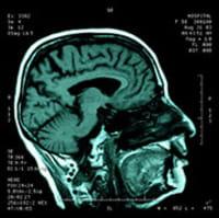 Cómo la adicción a la heroína podría cambiar la función cerebral