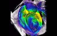 Descubren dos mutaciones asociadas a una miocardiopatía grave